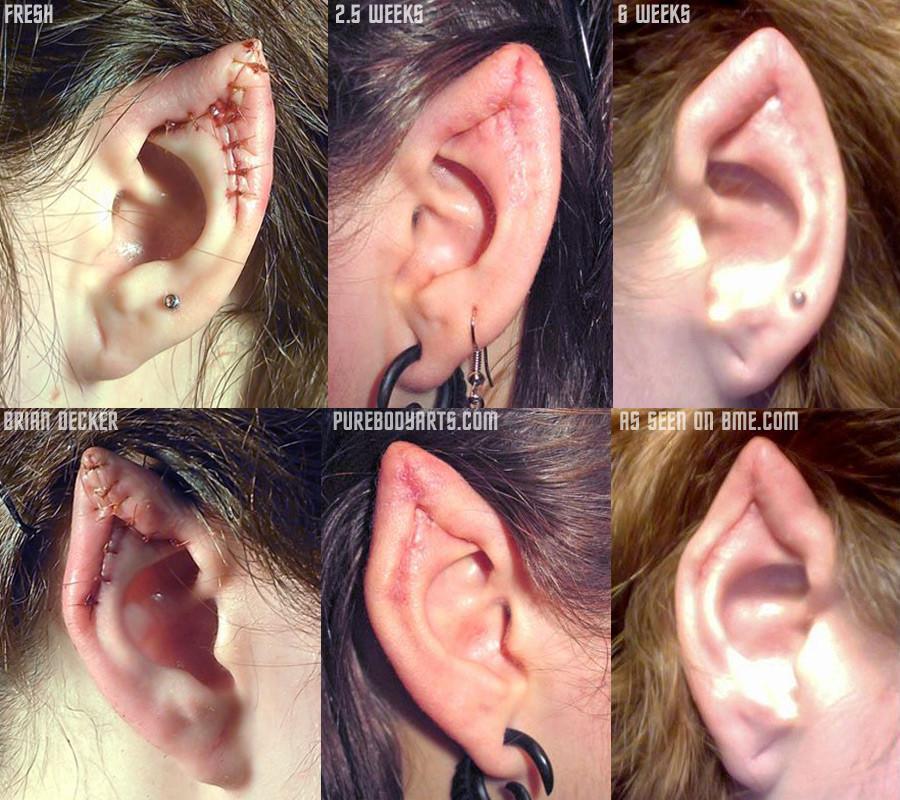 Le « ear pointing », étude d'un body-mod (attention images ...